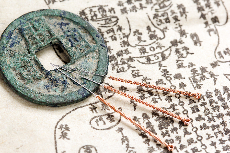 The Benefits of Using Acupuncture Treatment for Pain Relief