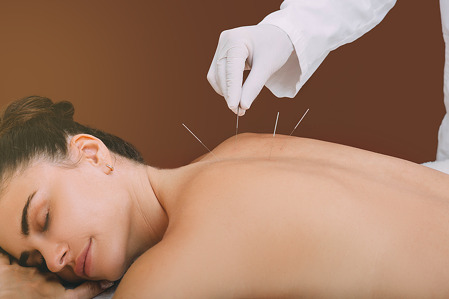 Acupunturist hand with acupuncture needle treating a woman.